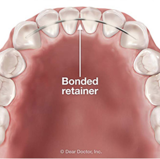 Why a Bonded Retainer Might be a Better Choice After Braces