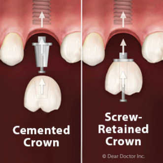 cemented crown and screw-retained crown