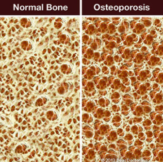 Certain Treatments for Osteoporosis Could Complicate Oral Surgery