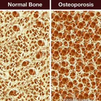 Normal bone and osteoporosis