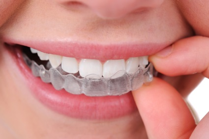 Invisalign: A Smile Solution for People of Any Age