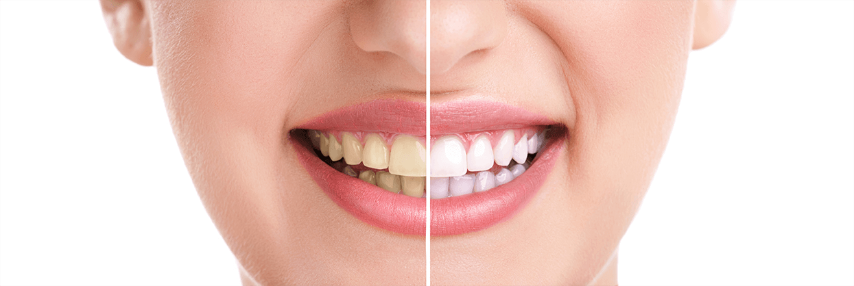 Teeth Whitening in Madison Heights